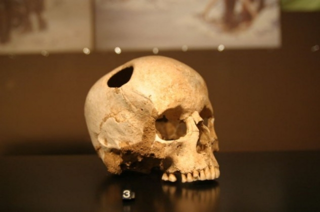 Trepanning involved boring a small hole into the skull to expose the dura mater, the outer membrane of the brain.